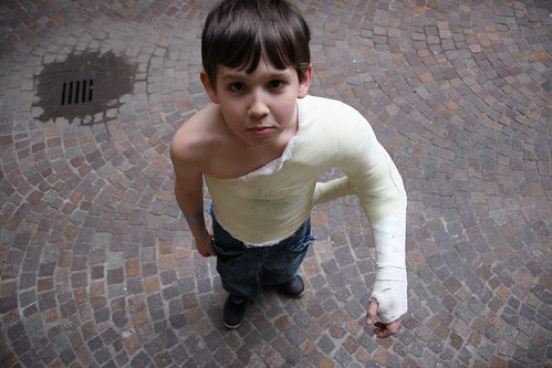 IMG_7083.jpg - Jeremy Down the Drain: His arm broke owing to a bone cyst, the result of malnutrition.